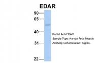 ARP49706_P050 - EDAR