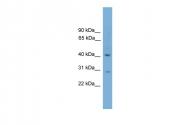 ARP49777_P050 - Brain link protein 2 / BRAL2