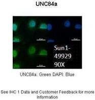 ARP49929_P050 - UNC84A