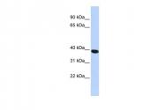 ARP50812_P050 - HYAL1 / Hyaluronidase-1