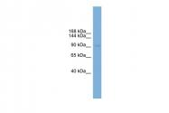 ARP51251_P050 - PHC2 / EDR2 / PH2