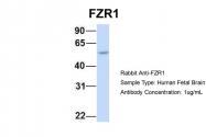 ARP51279_P050 - FZR1 / CDH1