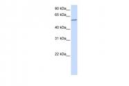 ARP51337_P050 - PPP3CA / Calcineurin A