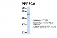 ARP51338_P050 - PPP3CA / Calcineurin A