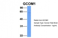 ARP51834_P050 - POLR2M / GRINL1A