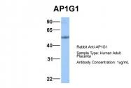 ARP51923_P050 - AP1 complex subunit gamma-1 / AP1G1