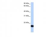 ARP51943_P050 - Cardiotrophin-1