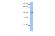 ARP52040_P050 - Calponin-2