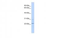 ARP52148_P050 - LYPLA1