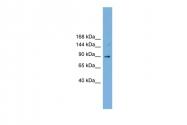 ARP52149_P050 - TACC3 / ERIC1