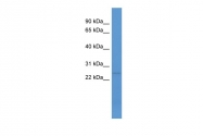 ARP52237_P050 - C1q-related factor