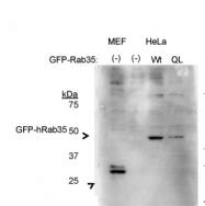 ARP52268_P050 - RAB35 / RAB1C