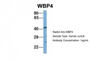 ARP52293_P050 - WBP4