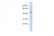 ARP52386_P050 - Cytokeratin 24