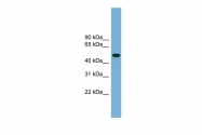 ARP52793_P050 - Ubiquilin-like protein