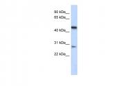 ARP53139_P050 - LACC1 / C13orf31