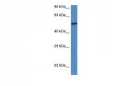 ARP53140_P050 - LACC1 / C13orf31