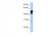ARP53345_P050 - Kinesin light chain 3