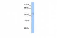 ARP53346_P050 - Kinesin light chain 3