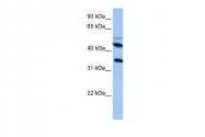 ARP53558_P050 - CD213a2 / IL13RA2