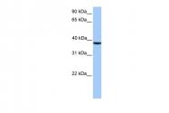 ARP53596_P050 - CSNK2A2 / CK2A2