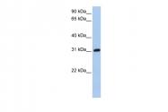 ARP53695_P050 - Dickkopf-like protein 1