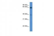 ARP53783_P050 - L-asparaginase