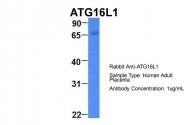 ARP54268_P050 - APG16L / ATG16L1