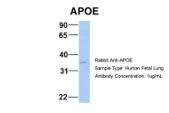 ARP54283_P050 - Apolipoprotein E / Apo E