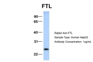 ARP54292_P050 - Ferritin light chain (FTL)