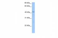 ARP54452_P050 - HMBS