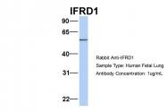 ARP54585_P050 - IFRD1