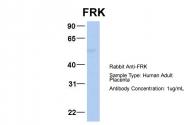 ARP54617_P050 - FRK / PTK5