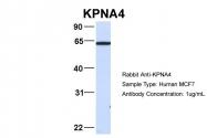 ARP54676_P050 - KPNA4 / Importin alpha-4