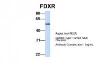 ARP54707_P050 - Ferredoxin reductase