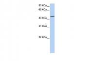 ARP54743_P050 - Islet cell autoantigen 1 / ICA1