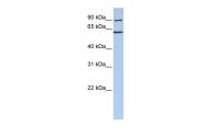 ARP54825_P050 - CCT5 / TCP1 epsilon
