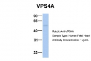 ARP54915_P050 - VPS4A