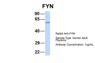 ARP55567_P050 - FYN