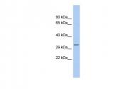 ARP56224_P050 - Myelin Basic Protein
