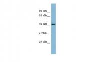 ARP56440_P050 - MAP kinase p38 delta / MAPK13