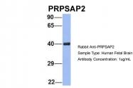 ARP56445_P050 - PRPSAP2