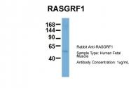 ARP56515_P050 - RASGRF1