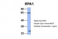 ARP56526_P050 - RPA1