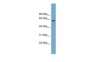 ARP57167_P050 - CNDP2