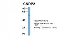 ARP57168_P050 - CNDP2