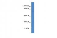 ARP57516_P050 - PPP3CB / CALNA2