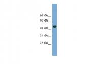 ARP57839_P050 - PSMD12
