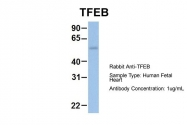 ARP58116_P050 - TFEB