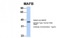 ARP58149_P050 - MAFB